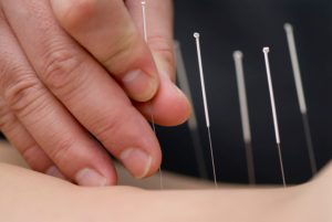 Acupuncture is a component of the health care system of China that can be traced back over 3,000 years. Qi is energy that flows through channels in the body called meridians. As long as there is a free flowing circulation of qi through the meridian system, we are at our optimum health.